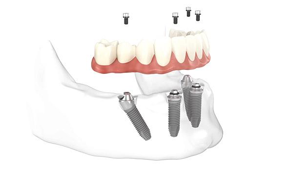 Animation von Zahnersatz, der von vier Implantaten getragen wird