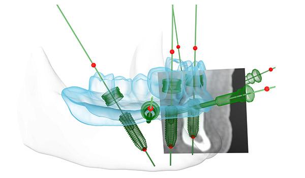 Animation der Planung für die besten Positionen der Zahnimplantate im Kieferknochen