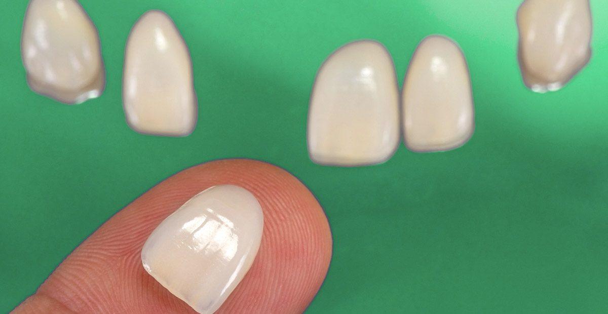 Eine Veneers-Schale liegt auf dem Finger. Im Hintergrund sind fünf weitere Veneers zu sehen.