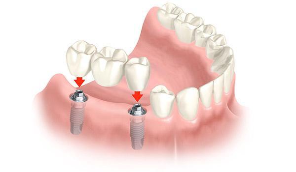 Animation einer implantatgetragenen Brücke, mit der größere zahnlose Bereiche wieder geschlossen werden können.