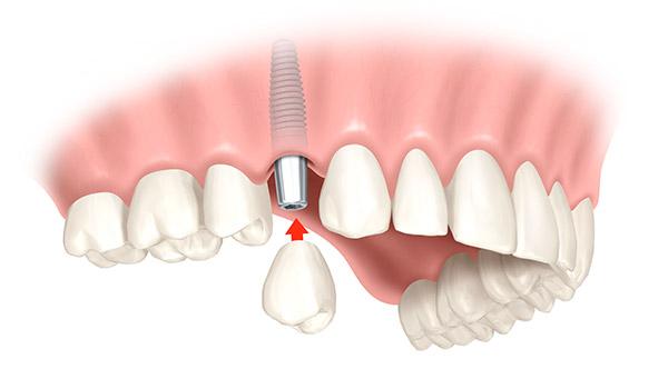 Animation eines Einzelzahnimplantats, das eine Zahnlücke im Gebiss schließt.