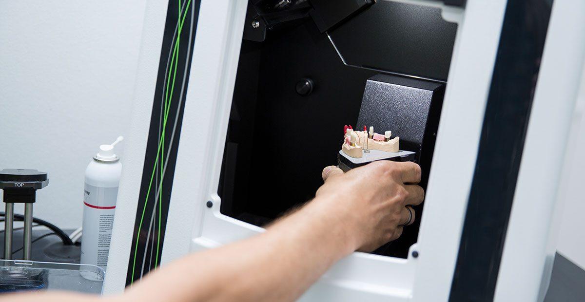 Ein Zahntechniker stellt ein Gebissmodell in einen CAD/CAM-Scanner
