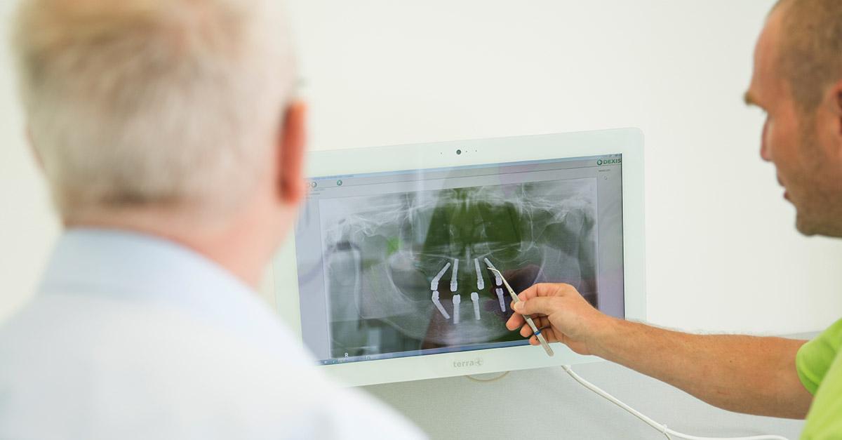 Dr. Buchmann zeigt, wie er feste dritte Zähne für den Oberkiefer in Halle (Saale) einsetzt.